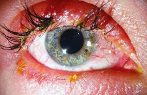 Eyelash Extensions Gone Wrong eye infection 300x194 - The Most Horrifying Eyelash Extensions-Gone-Wrong Story Ever!
