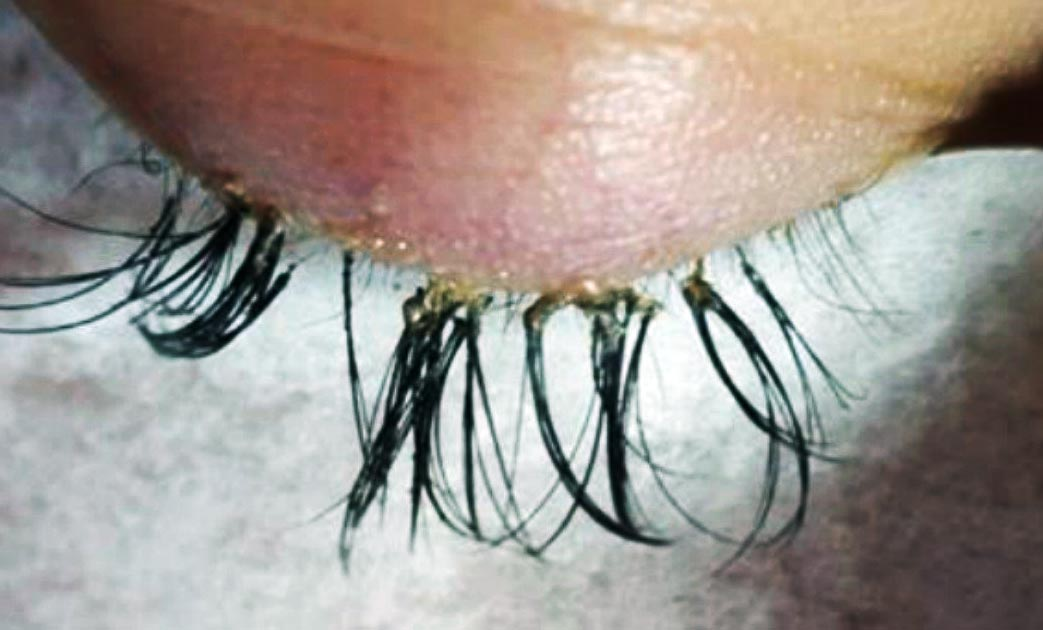 Eyelash Extensions Gone Wrong - The Most Horrifying Eyelash Extensions-Gone-Wrong Story Ever!