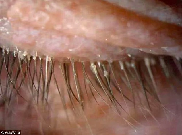 Lady Has Itchy Red Eyes For 2 Years Prior To Physicians Inform Her She Has Hundreds Of Eyelash Mites