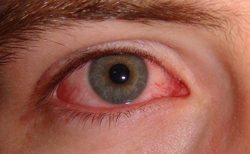 Lady Has Itchy Red Eyes For 2 Years Prior To Physicians Inform Her