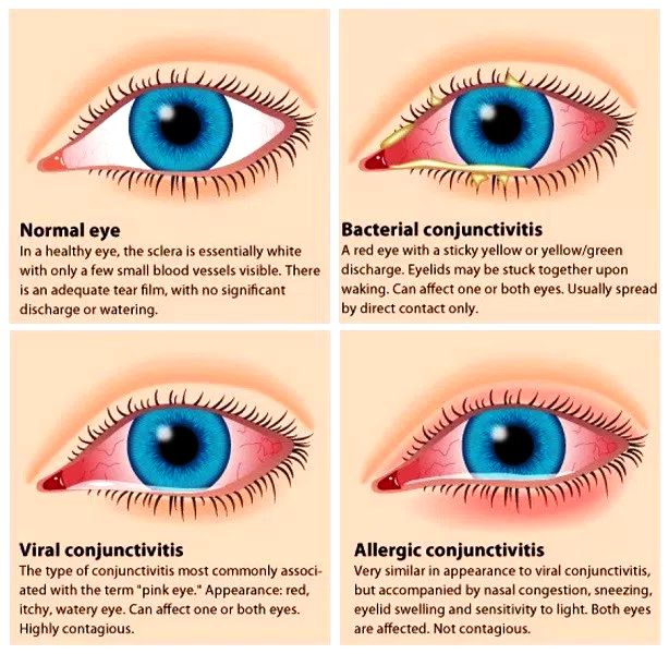 types of eye discharge eye booger - What Are Eye-Boogers and What Causes Them?